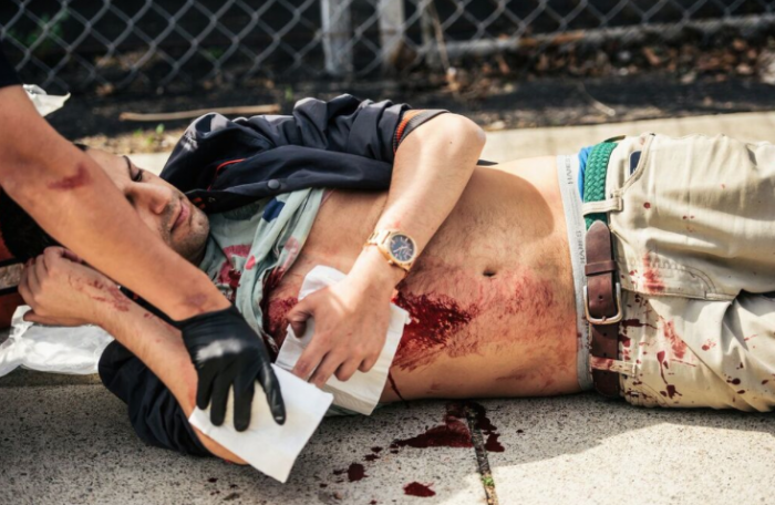 In this photo provided by OC Weekly, a stabbing victim receives first aid from an Anaheim Police Officer, at Pearson Park in Anaheim on Saturday, Feb. 27, 2016. Three people were stabbed Saturday, one critically, after a small group of Ku Klux Klan members staging an anti-immigrant rally clashed with a larger gathering of counter-protesters, police said. (Eric Hood/OC Weekly via AP)