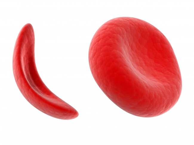 Inglewood Doctors Talk About Sickle Cell During Minority Health Awareness Month